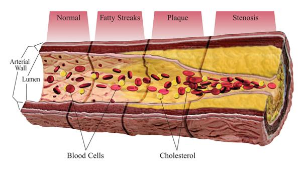 an analysis of the symptoms and cause of atherosclerosis